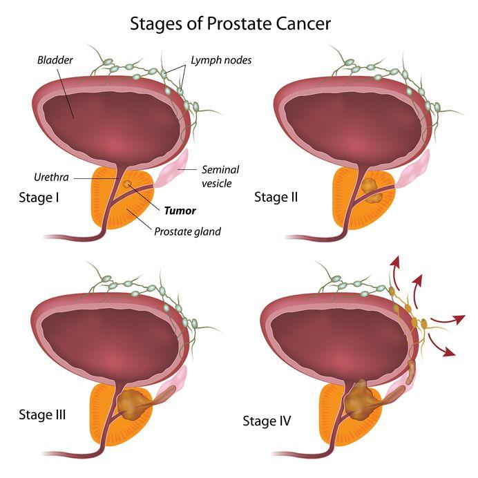 Stadien Prostatakrebs