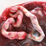 12156635 – fresh human placenta