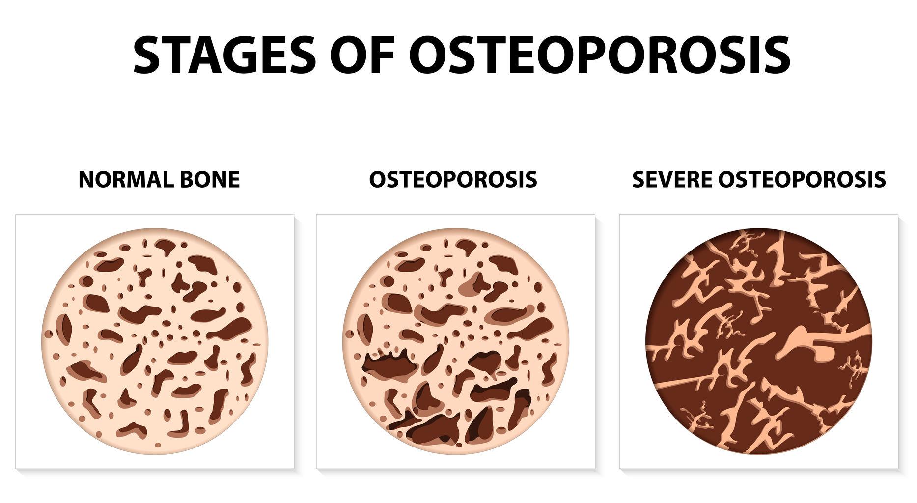 Osteoporose Stadien